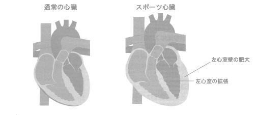 スポーツ心臓