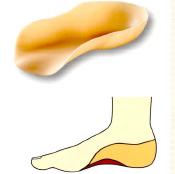 ランゲ型下肢装具