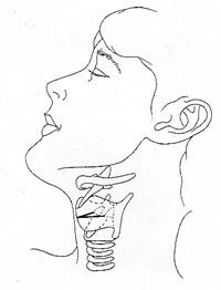 喉頭摘出手術 喉頭の位置