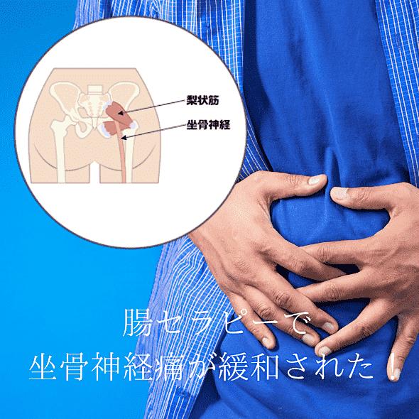 腸セラピーで坐骨神経が緩和した