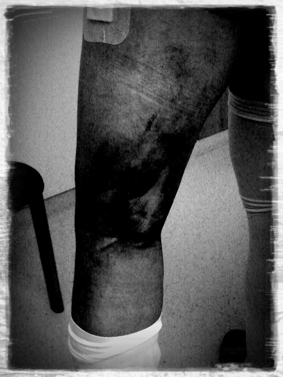 Das verletzte Bein ( Ansicht Kniekehle )