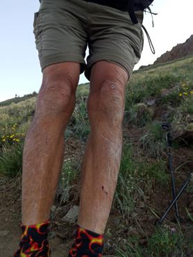 et leur résultat sur les jambes