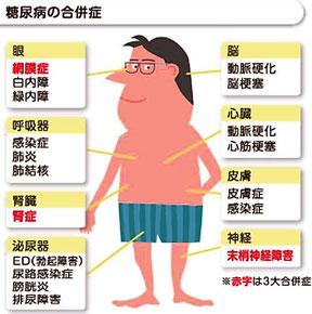 糖尿病 合併症