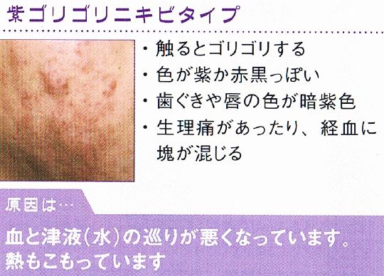 なりた安心堂薬局 紫ニキビ 漢方相談