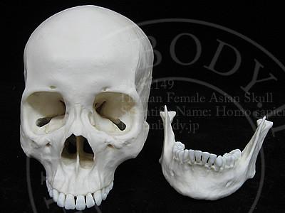 女性の頭蓋骨模型BCBC149の下顎骨を外した様子