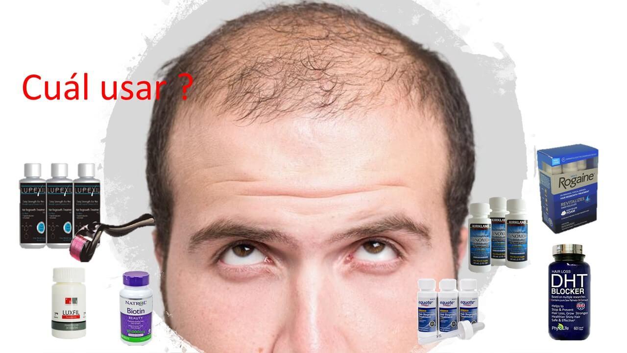 ¿ Cómo iniciar el tratamiento de  minoxidil para alopecia masculina ?