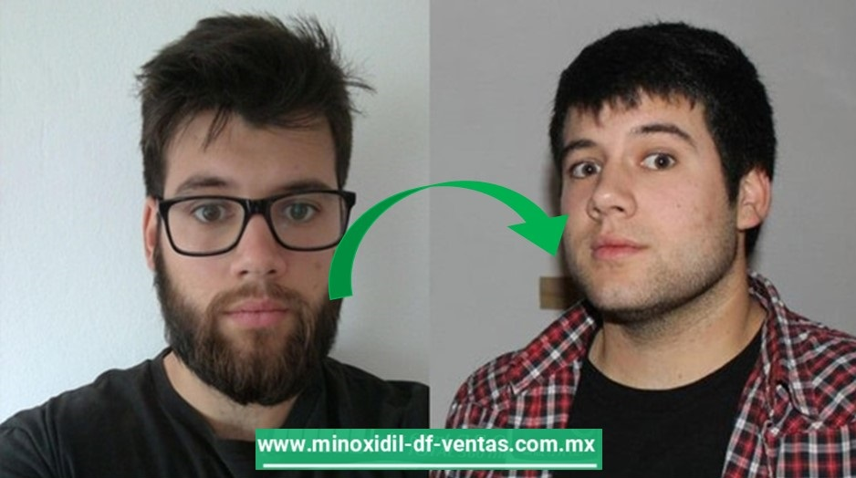 ¿Se cae la barba al dejar de usar el minoxidil ?