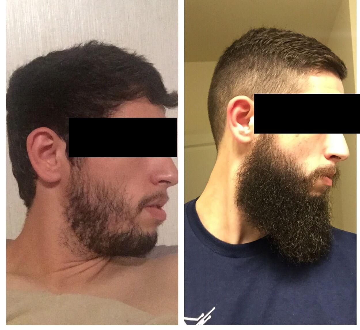 como engrosar la barba rapidamente minoxidil aceite biotina