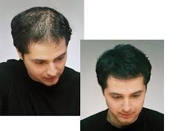 minoxidil para alopecia temporal fluvia