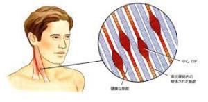首筋に出来た筋の硬結、マニピュレーションで緩める必要があります