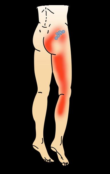 Osteopathie bei Lumboischialgie & Ischias in München