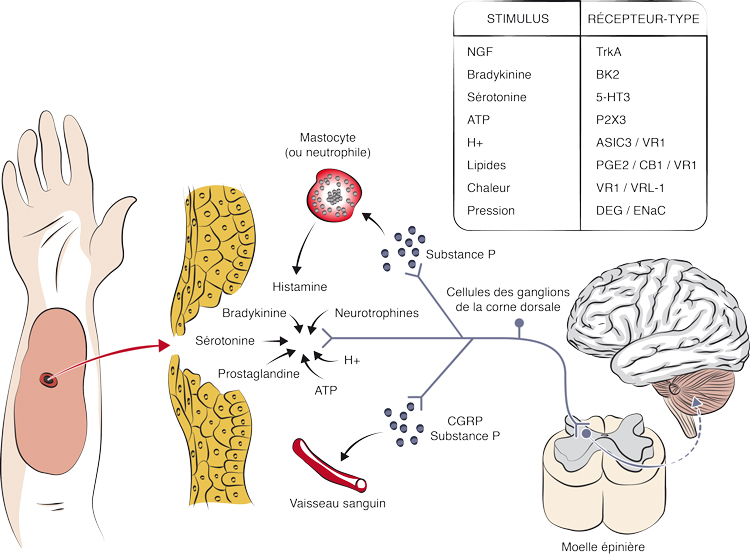 Hyperalgésie (a) et hyperalgésie secondaire (b)
