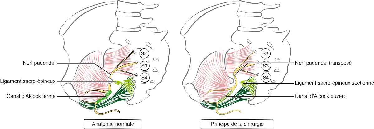 Chirurgie de la névralgie pudendale