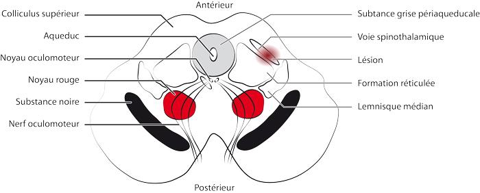 Mesencéphalotomie