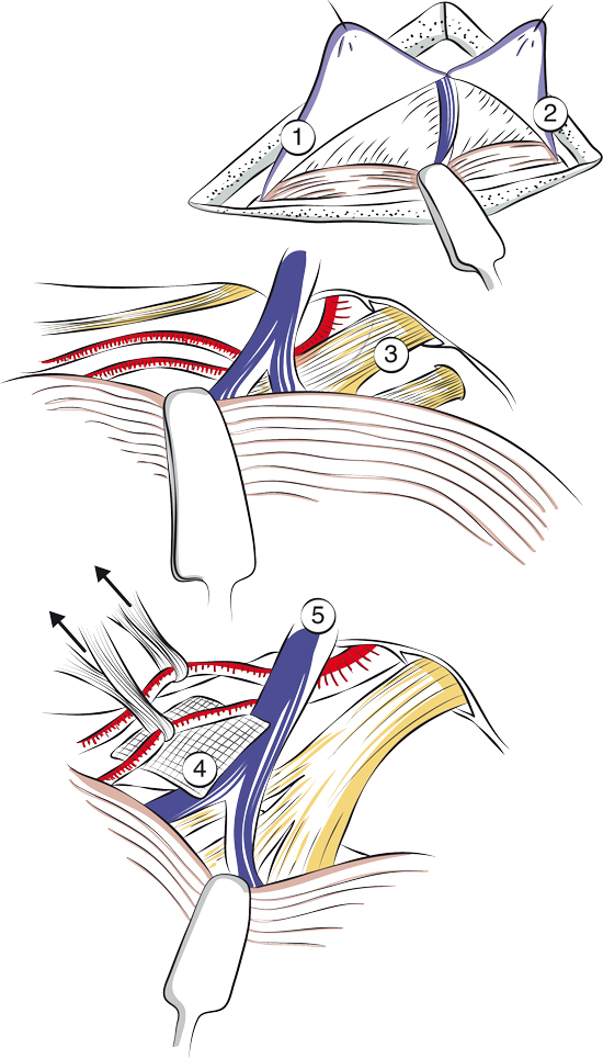 Débouclage vasculo-nerveux dans la névralgie faciale