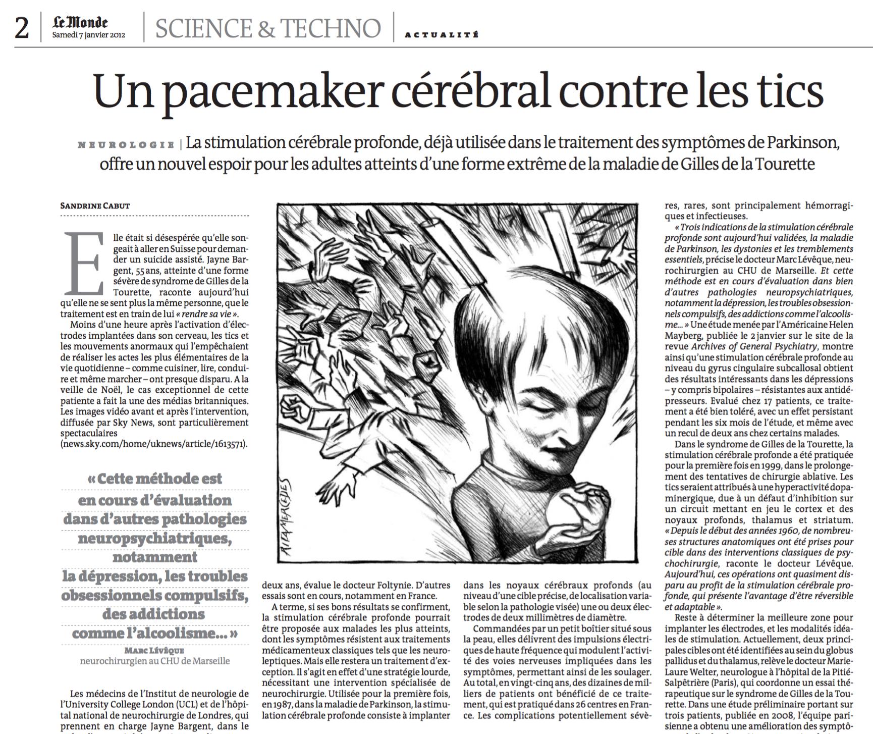 Le Monde - Un pacemaker cérébral contre les tics - 07/01/12