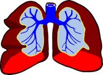 Asthma Bronchiale - Erkrankung der Atemwege - Abbildung der Lunge