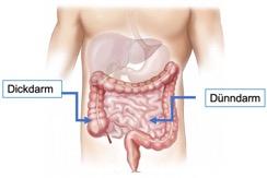 Heiler, Colitis ulcerosa, Darstellung Bild vom Dünndarm und Dickdarm