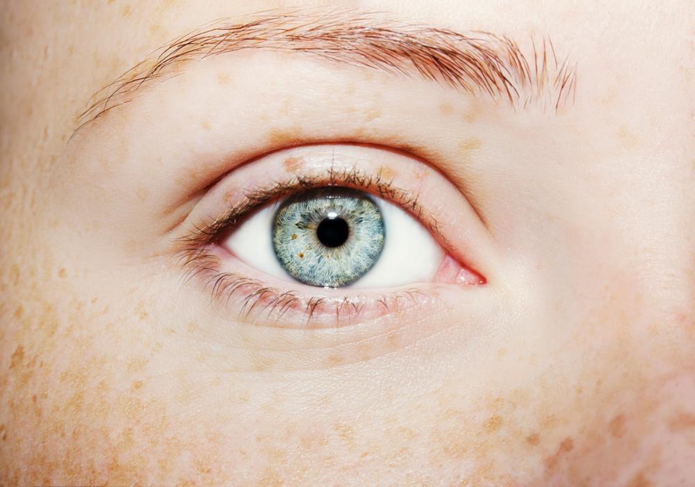 HIFU Ultratherapie bei elle Institut für Kosmetik Zofingen