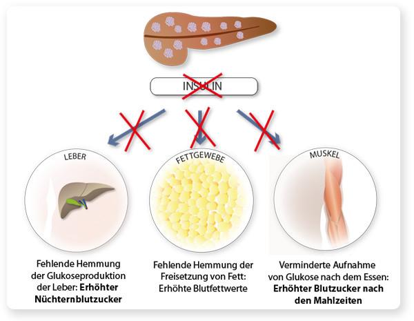 Die Auswirkungen des Insulinmangels auf Leber, Muskel und Fettgewebe