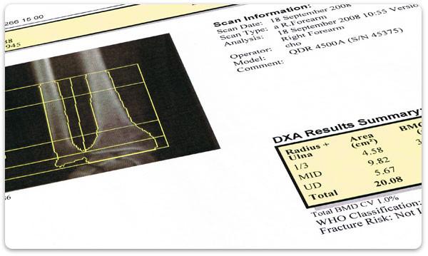 Der DXA-Scan ist die wichtigste diagnostische Untersuchung bei Osteoporose