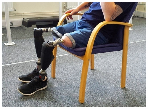 Osseointegration can be a viable alternative to traditional prosthetic sockets for lower limb amputees (picture courtesy of Pace Rehab)