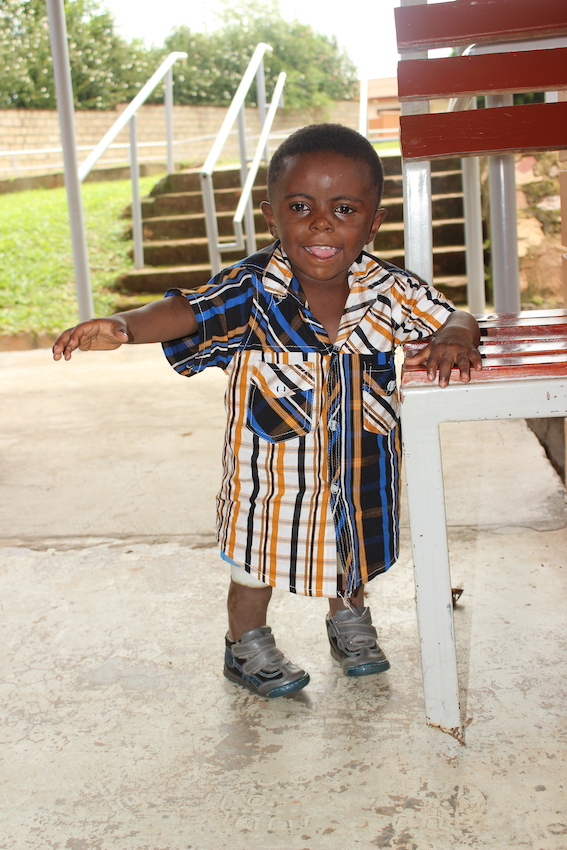 Miracle is a happy little boy living a normal life after both his legs were amputated and he received his first set of prosthetic legs (picture courtesy of CoRSU).