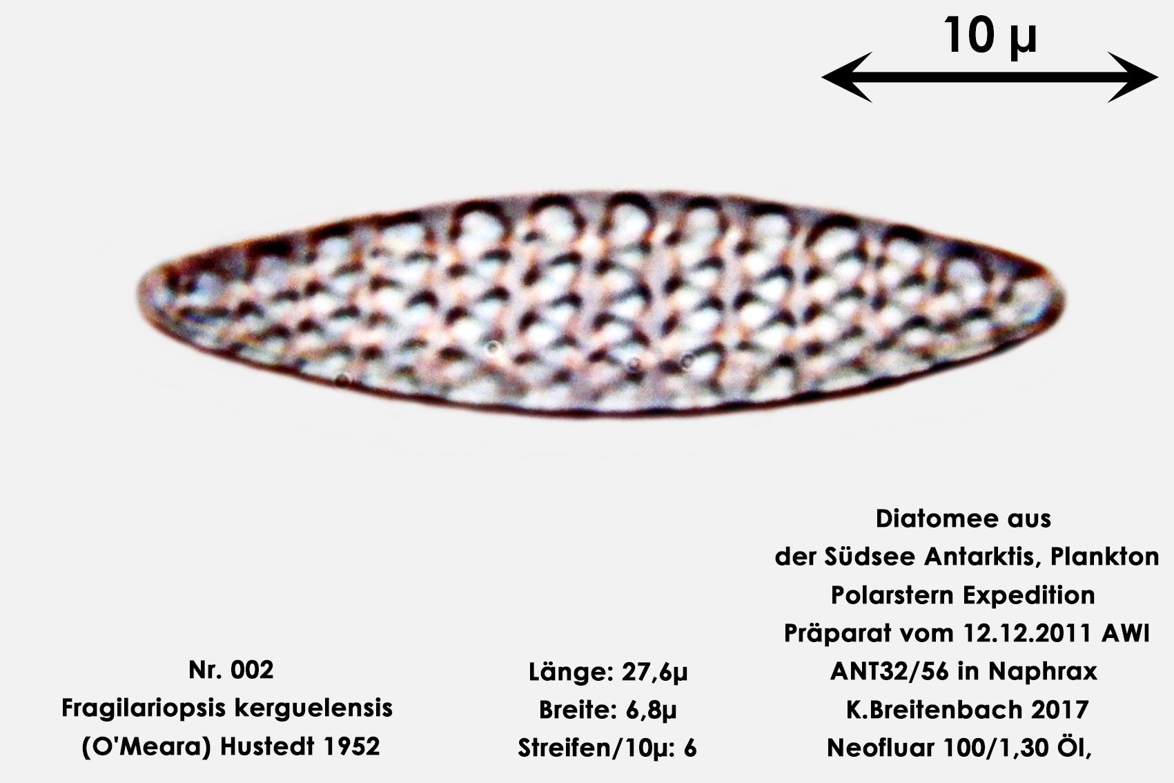 Bild 1 Art: Fragilariopsis kerguelensis (O'Meara) Hustedt 1952
