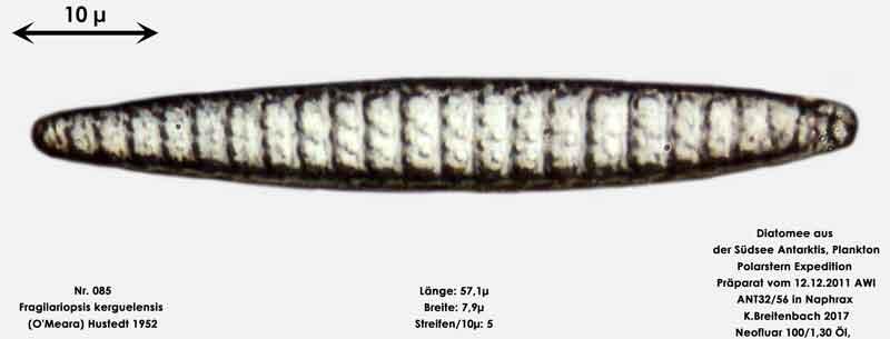Bild 15 Art: Fragilariopsis kerguelensis (O'Meara) Hustedt 1952