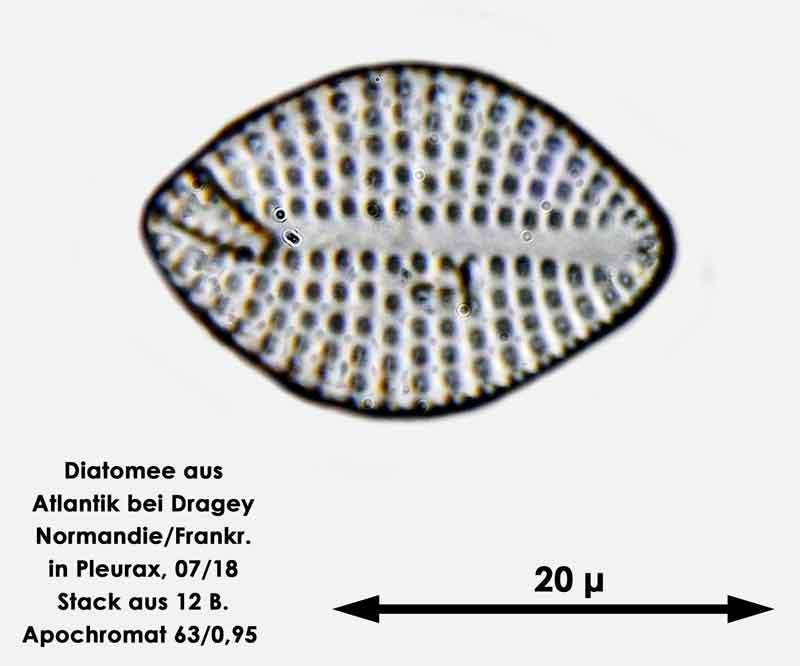 Bild 56 Diatomee aus dem Atlantik bei Draghey de Monton (Normandie). Art: Rhaphoneis amphiceros (Ehrenberg) Ehrenberg 1844