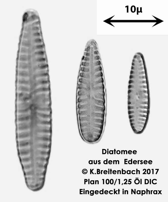 Bild 18 Diatomeen aus dem Edersee, verschiedene Aufnahmen, Art: vermutlich Rhoicospenia spec.