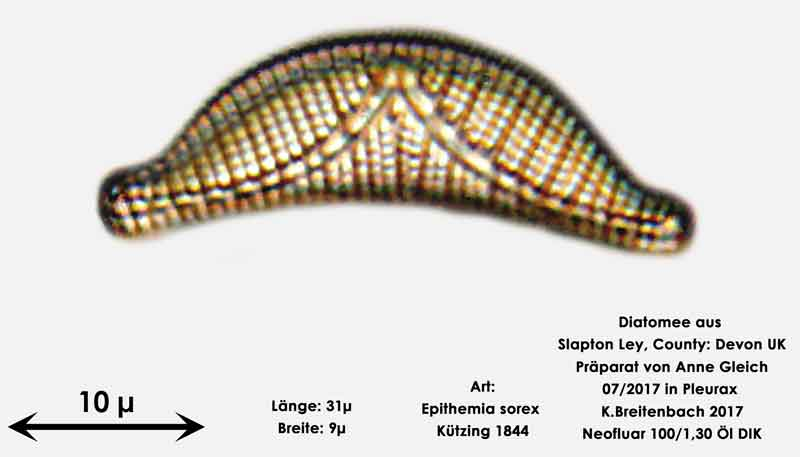 Bild 21 Diatomeen aus Slapton Ley, Devon UK; Art: Epithemia sorex Kützing 1844
