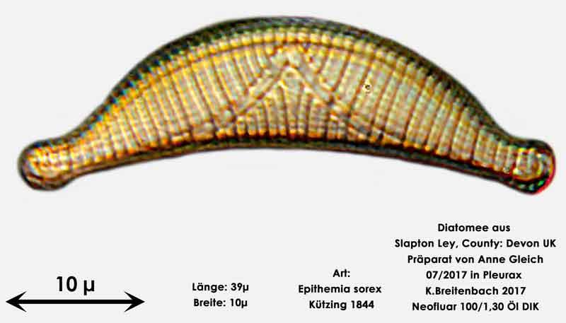 Bild 19 Diatomeen aus Slapton Ley, Devon UK; Art: Epithemia sorex Kützing 1844