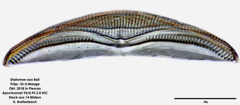 Bild 12 Diatomee aus Bali; Art: Amphora sp