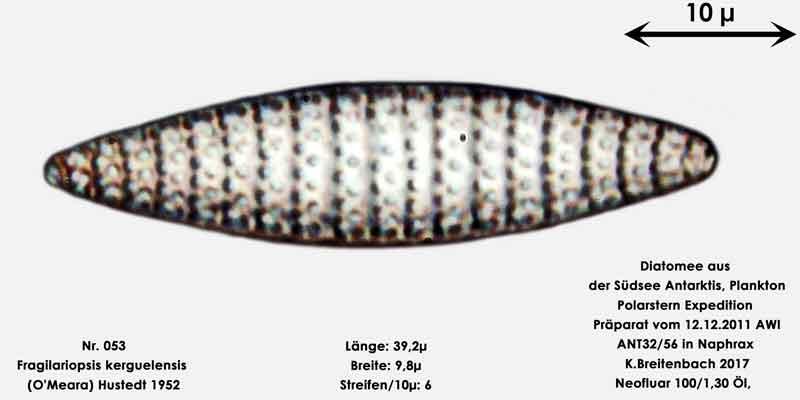 Bild 21 Art: Fragilariopsis kerguelensis (O'Meara) Hustedt 1952