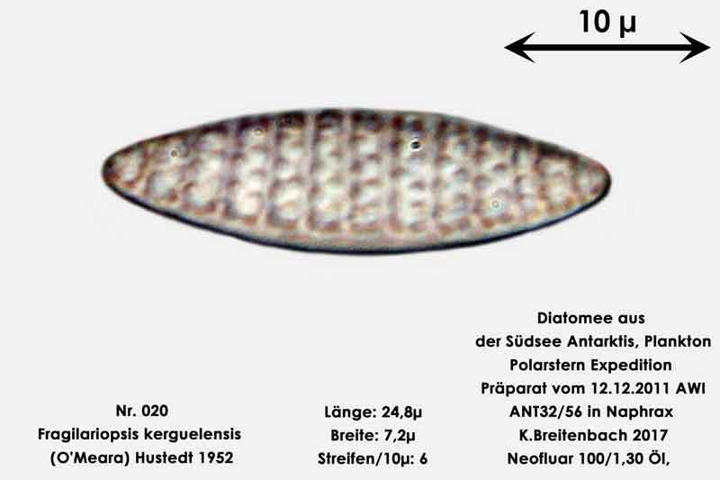 Bild 8 Art: Fragilariopsis kerguelensis (O'Meara) Hustedt 1952