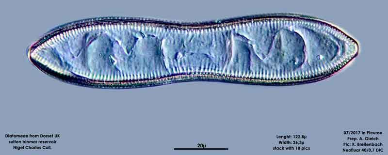 Bild 7 Diatomeen aus Dorset UK, Süßwasser. Art: Cymatopleura librile (Longbye) Schmidt 1899