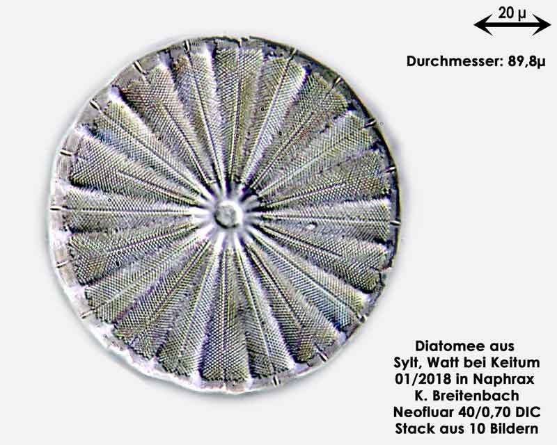 Bild 8 Diatomee aus Sylt/Keitum Watt, Art: Actinoptychus splendens (Shadbolt) Ralfs