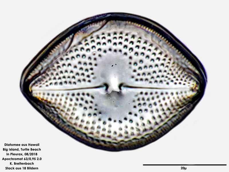 Bild 96 Diatomee aus Hawaii, Big Island, Turtle Beach. Art: Vikingea gibbocalyx (J Brun) Witkowski, Lange-Bertalot & Metzeltin 2000