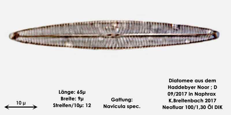 Bild 20 Diatomee aus dem Haddebyer Noor in Schleswig Holstein; Gattung: Navicula spec.