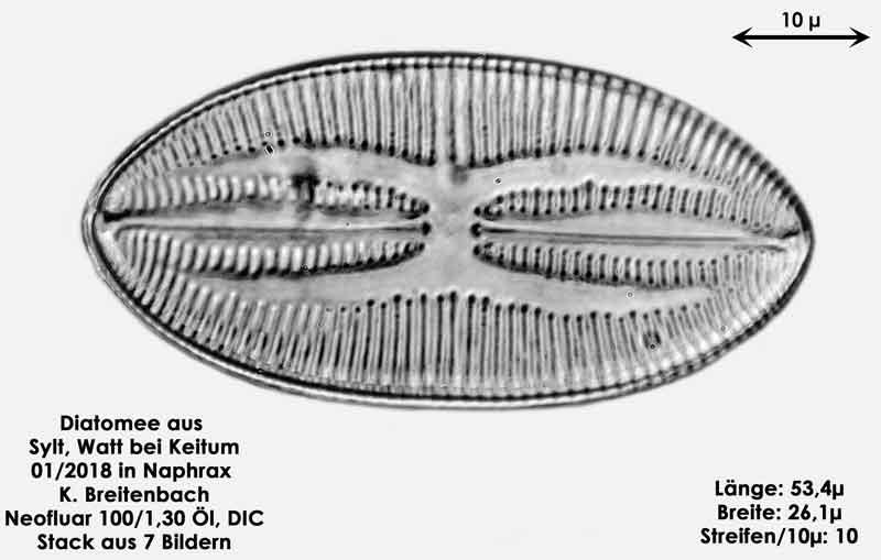 Bild 34 Diatomee aus Sylt/Keitum Watt, Art: Lyrella atlantica (Schmidt), Crawford & Mann 1990
