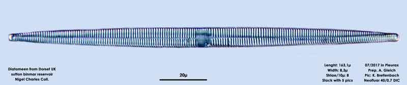 Bild 12 Diatomeen aus Dorset UK, Süßwasser. Art: Fragilaria ulna (Nitzsch) Lange-Bertalot 1980