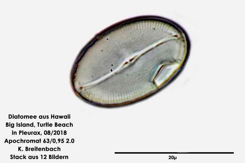 Bild 107 Diatomee aus Hawaii, Big Island, Turtle Beach. Gattung: konnte von mir nicht bestimmt werden