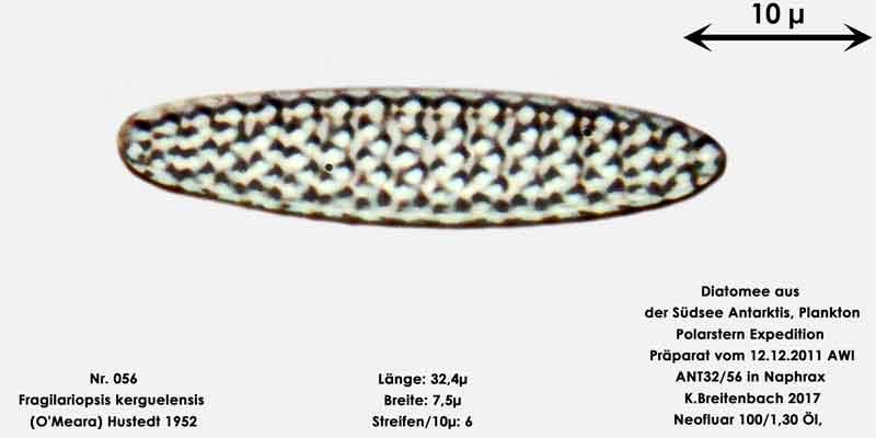 Bild 20 Art: Fragilariopsis kerguelensis (O'Meara) Hustedt 1952