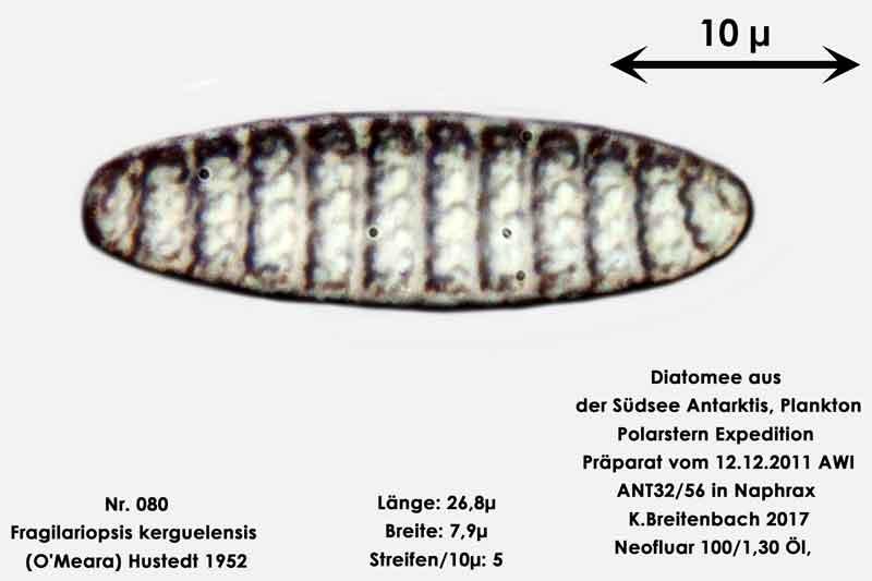 Bild 16 Art: Fragilariopsis kerguelensis (O'Meara) Hustedt 1952