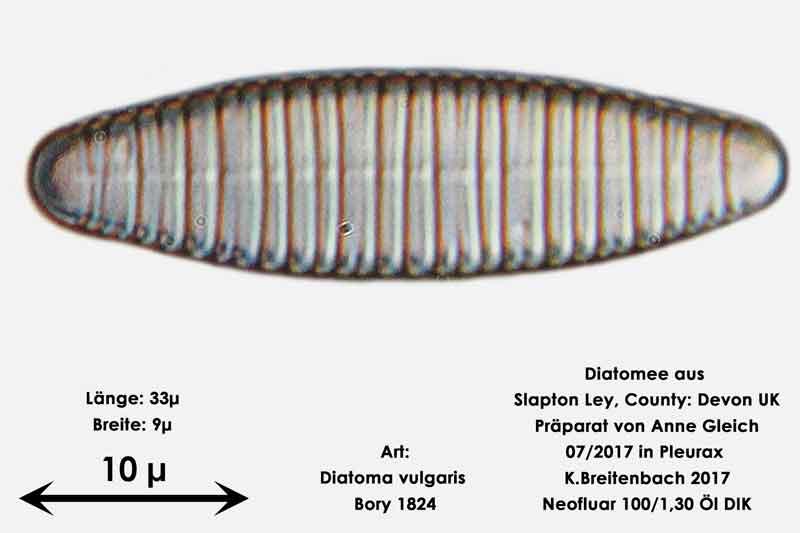 Bild 12 Diatomeen aus Slapton Ley, Devon UK; Art: Diatoma vulgaris Bory 1824