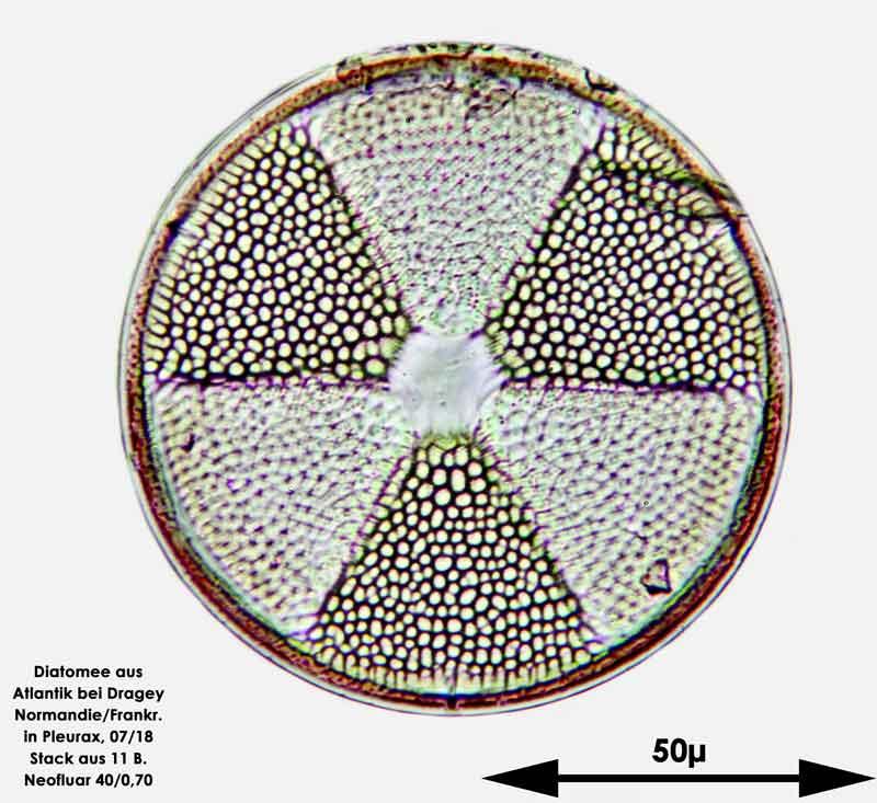 Bild 4 Diatomee aus dem Atlantik bei Draghey de Monton (Normandie). Art: Actinoptychus senarius (Ehrenberg) Ehrenberg 1843