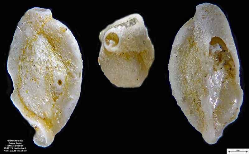 Bild 9 Foraminiferen aus Sand von Punta Sottile. Gattung: Triloculina sp.