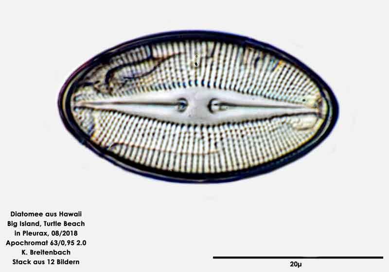 Bild 103 Diatomee aus Hawaii, Big Island, Turtle Beach. Gattung: konnte von mir nicht bestimmt werden