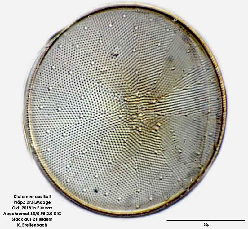 Bild 5. Diatomee aus Bali; Art: cf Actinocyclus ehrenbergii Ralfs in Pritchard 1861